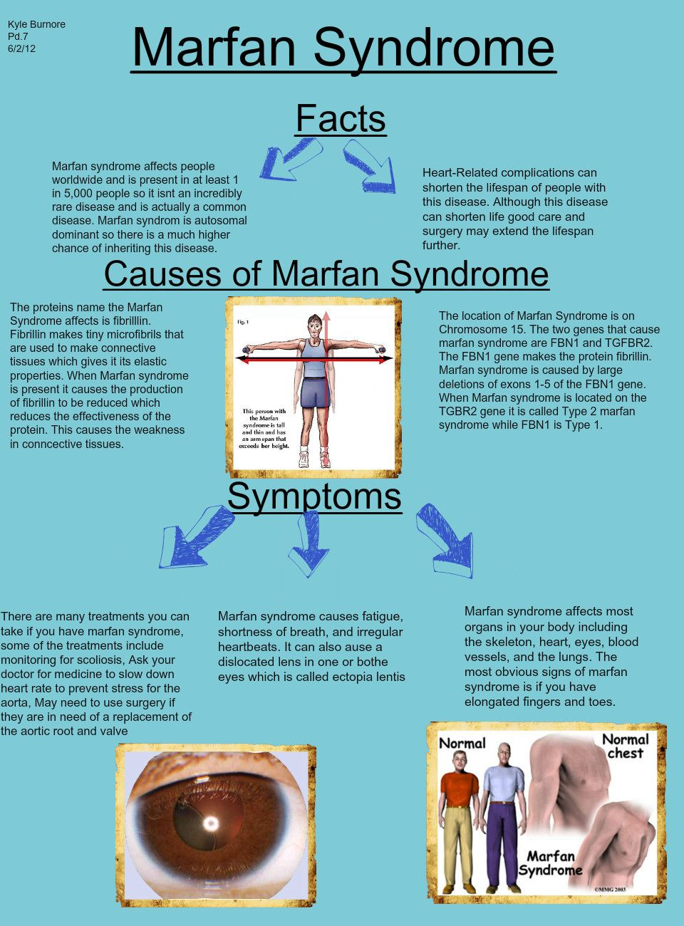 marfan syndrome disorder Marfan syndrome is a genetic disorder that affects the body's connective tissue connective tissue holds the body's cells, organs, and other tissue together.