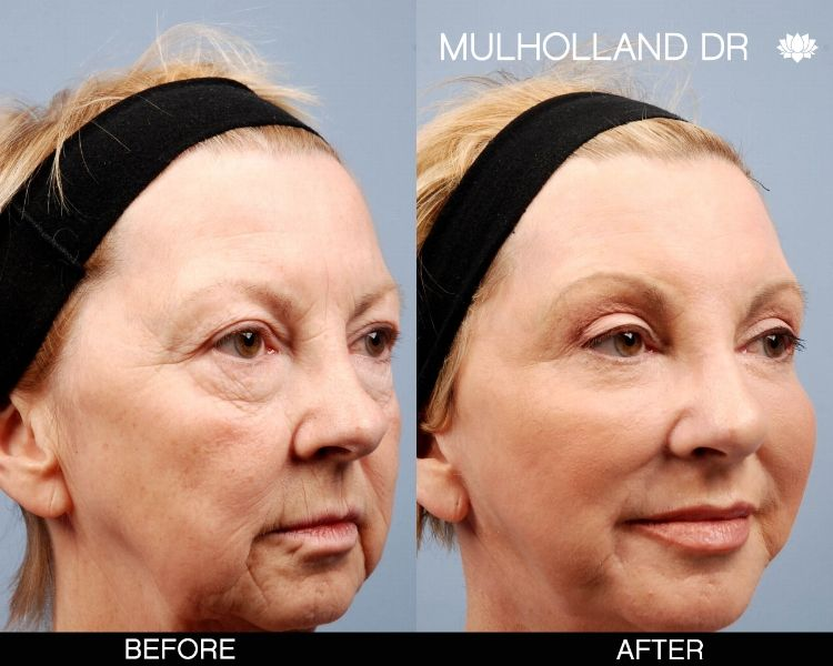 Before and after photos of Toronto patients who have underwent a face lift procedure at SpaMedica http://www.spamedica.com/cosmetic-plastic-surgery-toronto/facial-cosmetic-surgery/face-lift-toronto/  #Facelift #Torotno