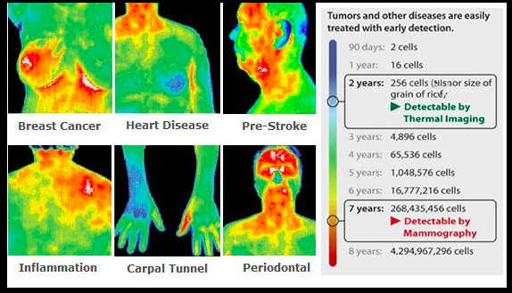 cancer Thermography detection breast