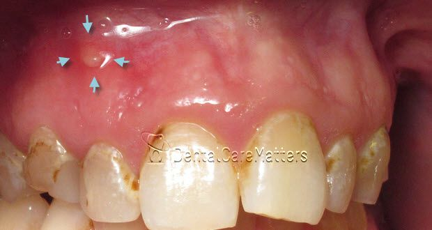 Dental Abscess A Problem Boiled Down Dental Infection Dental Dental Problems