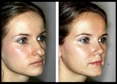 Rhinoplasty To Correct A Wide Nasal Tip 2 See This Young Woman S Before After Nose Plastic Surgery Nose Reshaping Rhinoplasty
