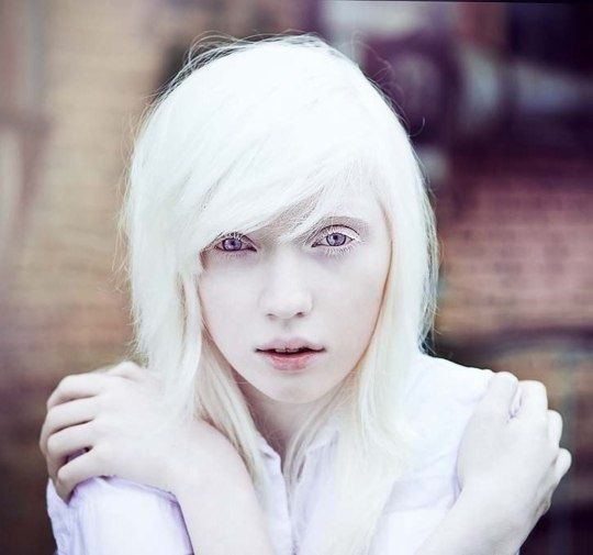 Eyes red natural human albino pictures