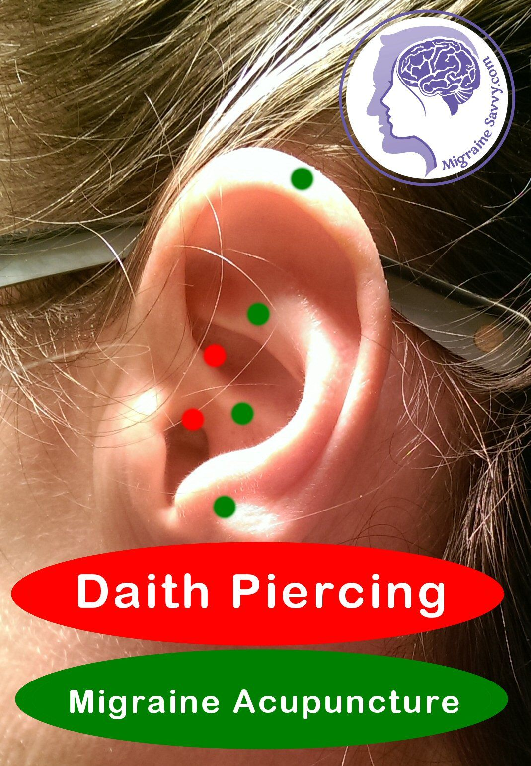 Bump after piercing  Daith piercing on Pinterest  Explore  ideas with Diath piercing