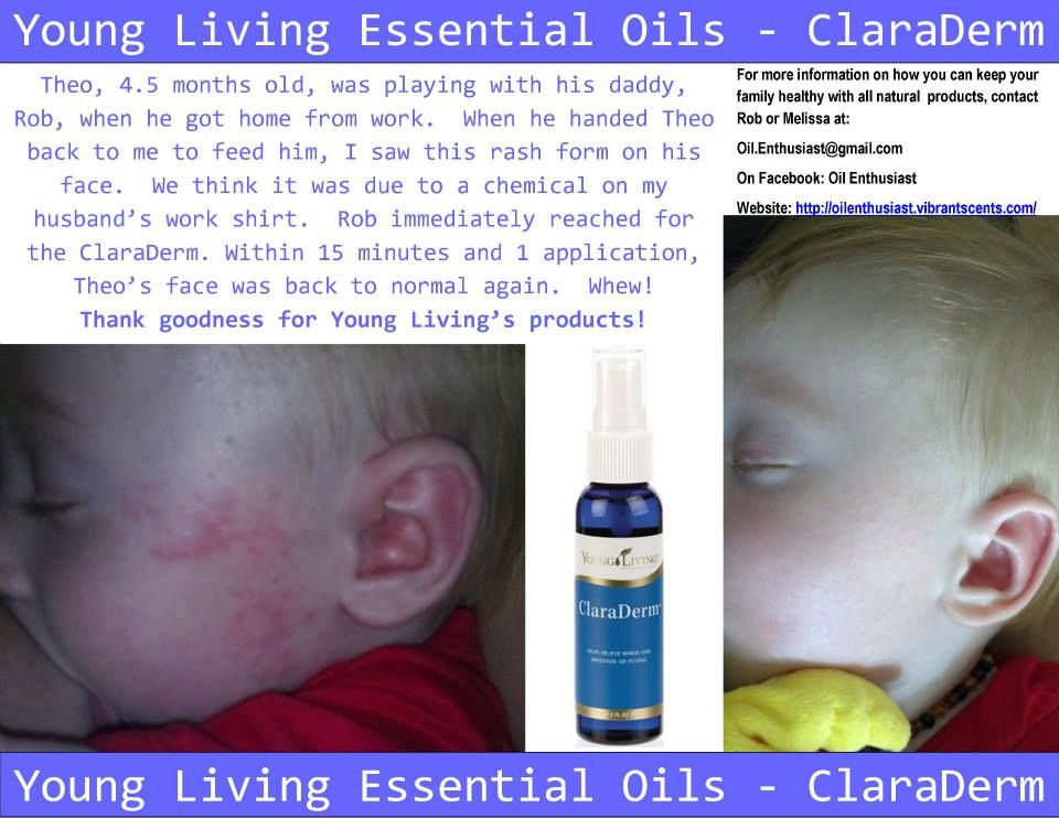 Young Living Essential Oils Claraderm Rash Young Living