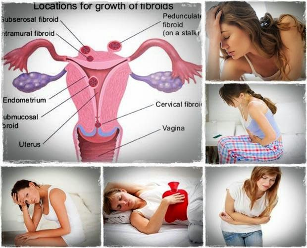"""endometrial ablation endometrial biopsy endometrial hyperplasia"""