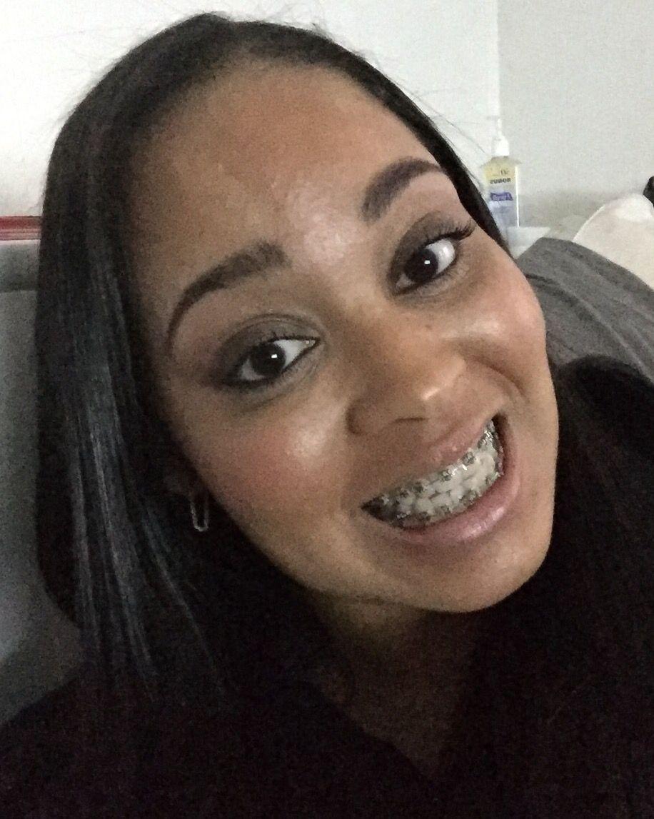Me in my braces braces