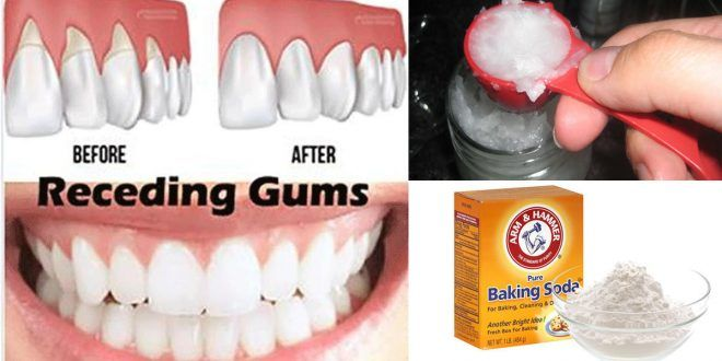 6 Natural Ways To Stop And Heal Receding Gums Before It S Too Late Gum Health Gum Disease Treatment Gum Disease Remedies