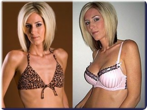 Size c breast implants