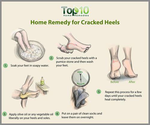 home remedies for hard skin on feet
