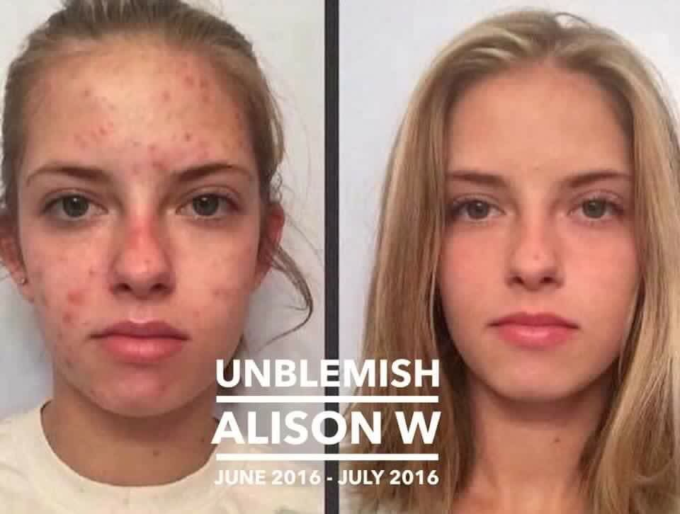Rodan And Fields Unblemish Control Acne And Oily Skin Or Your Money Back Face Acne How To Reduce Pimples Acne