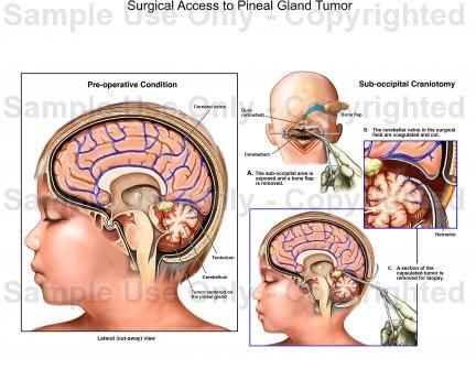 pineal tumor - Google Search | Medical transcription | Chiari