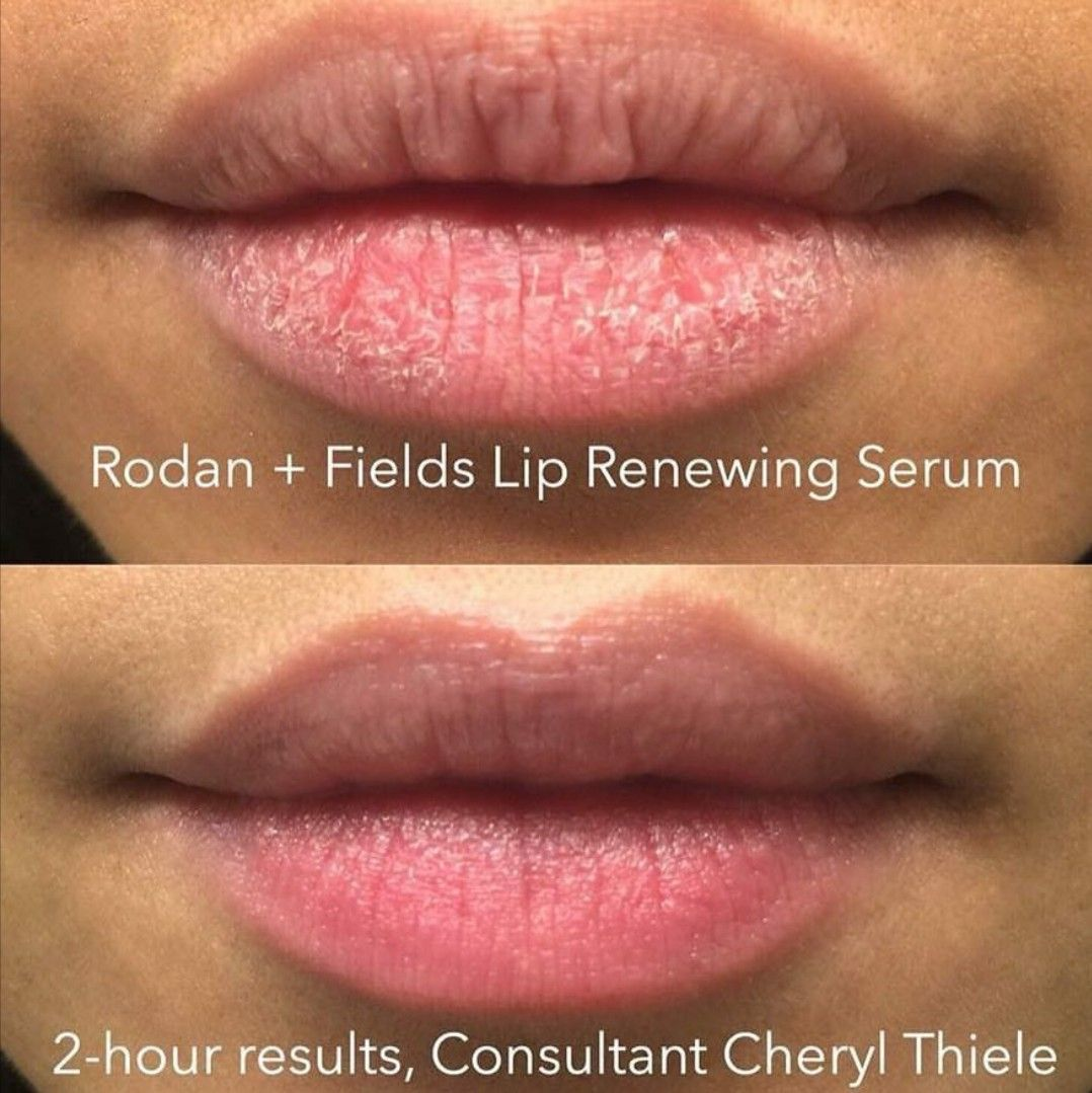 Kiss Your Dry Cracked Lips Goodbye Get Rid Of Cracked Chapped