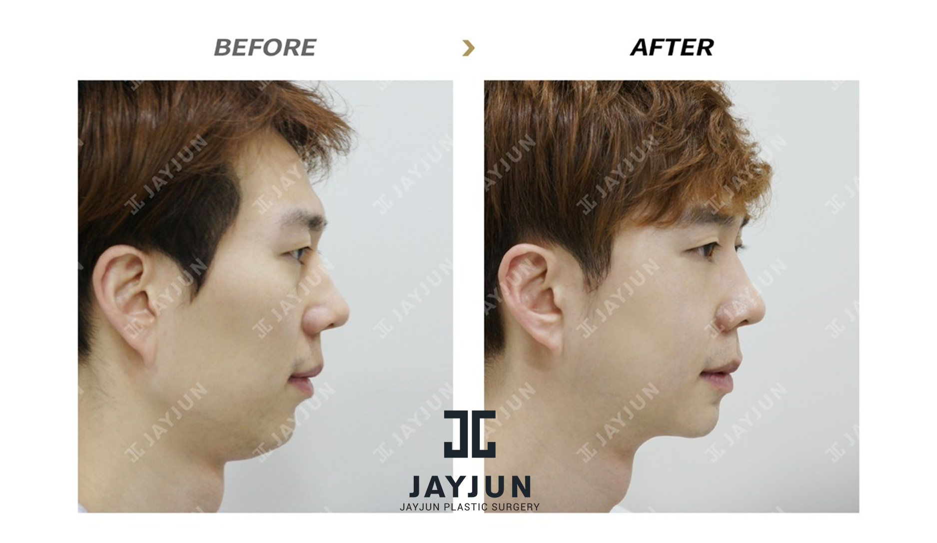Korean Plastic Surgery Korea Cosmetic Surgery Korean Plastic