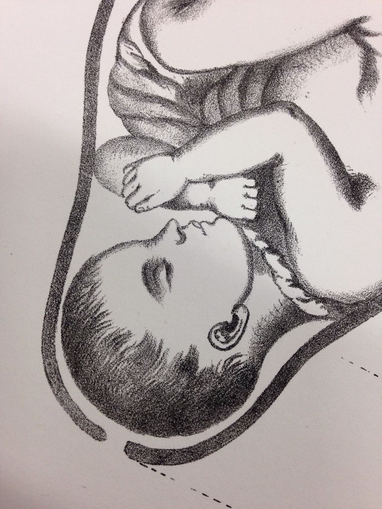 1865 antique medical print diagram baby fetus in utero womb uterus 1865 antique medical print diagram baby fetus in utero womb uterus vagina in prints ebay ccuart Gallery
