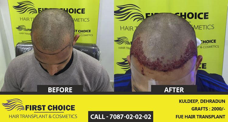 Look at the finest results of Hair transplant surgery done at FCHTC