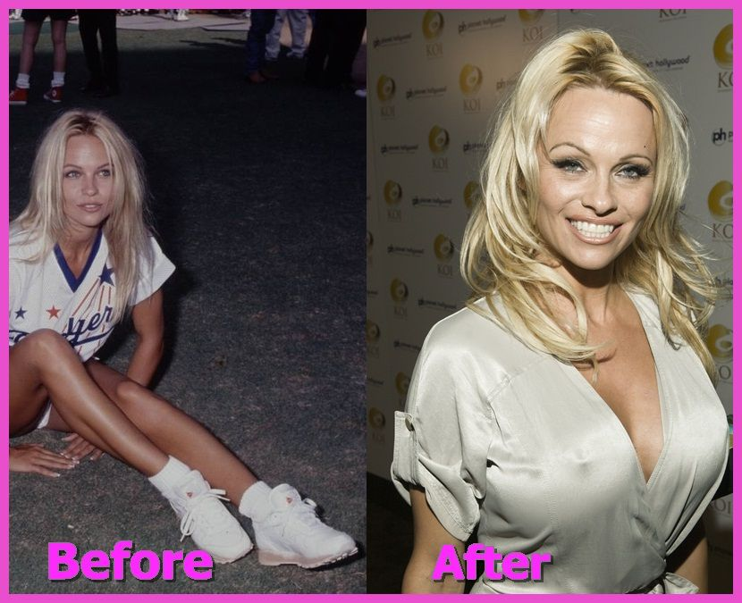 Pam Anderson Breast Implant Plastic Surgery Before And After ...
