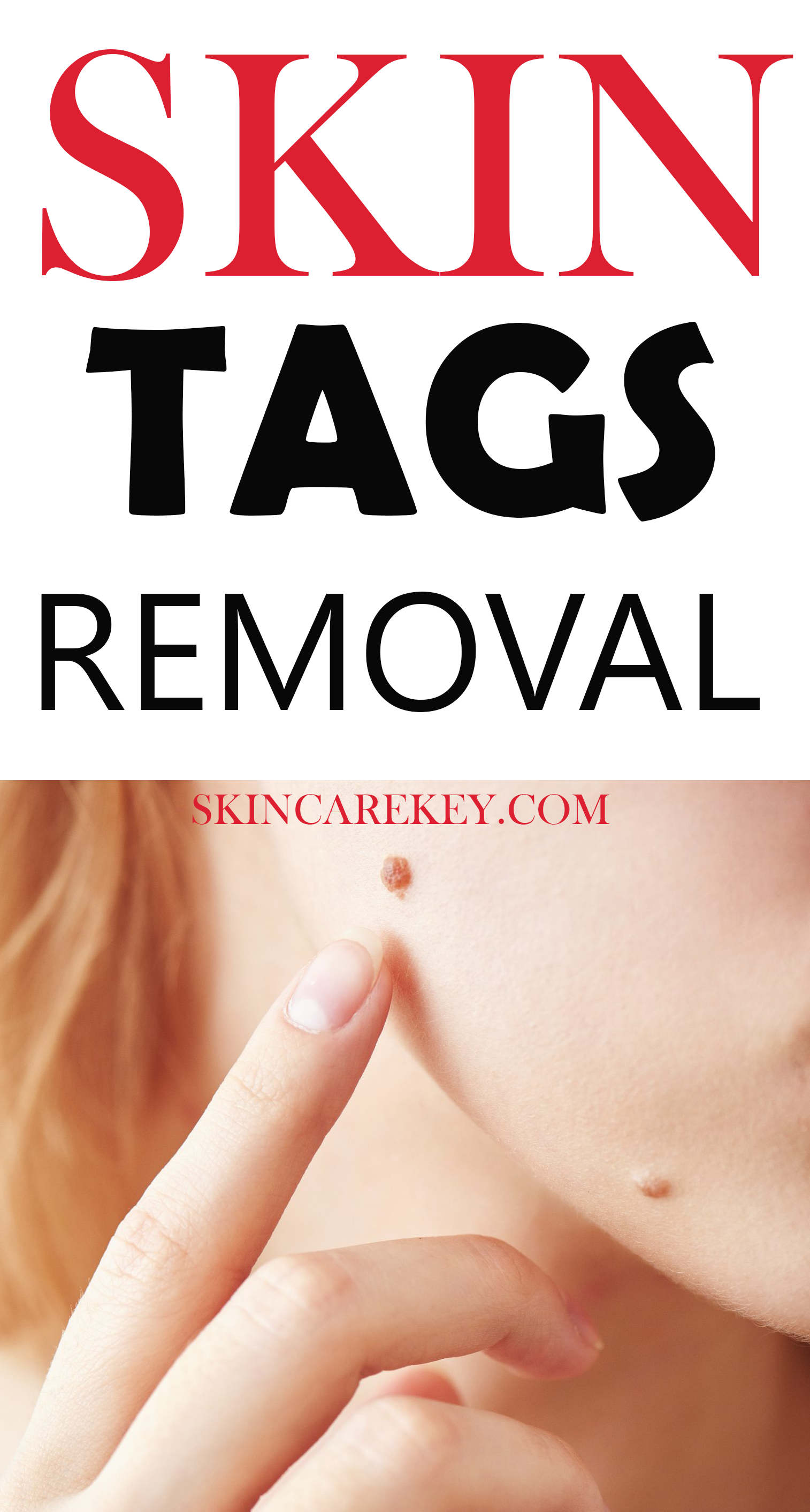 Here's an topical remedy that can get rid of these