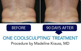 No more muffin top! Yes Please! Freeze your fat away - no needles no knives!