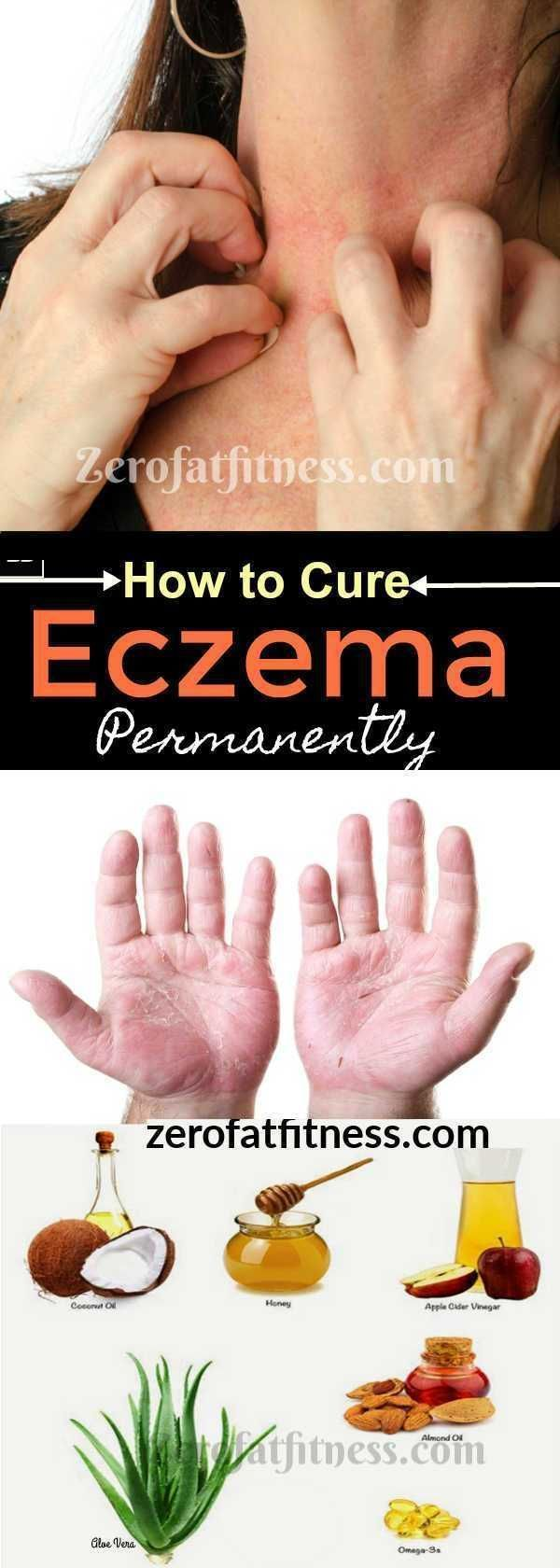 12 Best Home Remedies to Get Rid of Eczema Fast and Permanently -