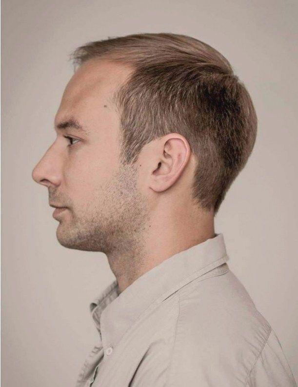 Verschiedene Herren Frisuren Fur Geheimratsecken Frisur Geheimratsecken Coole Frisuren Herrenhaarschnitt