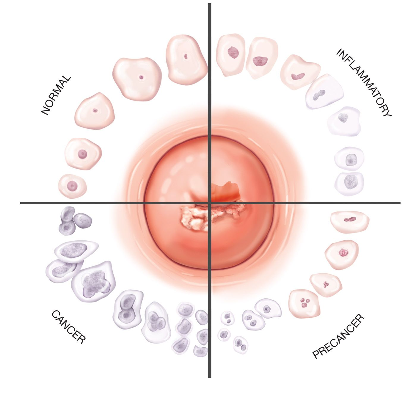 Pap smear. Cells of the cervix (shown in the center) change in ...