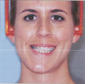 Double jaw surgery blog: she tracks the whole process from pre-op ...