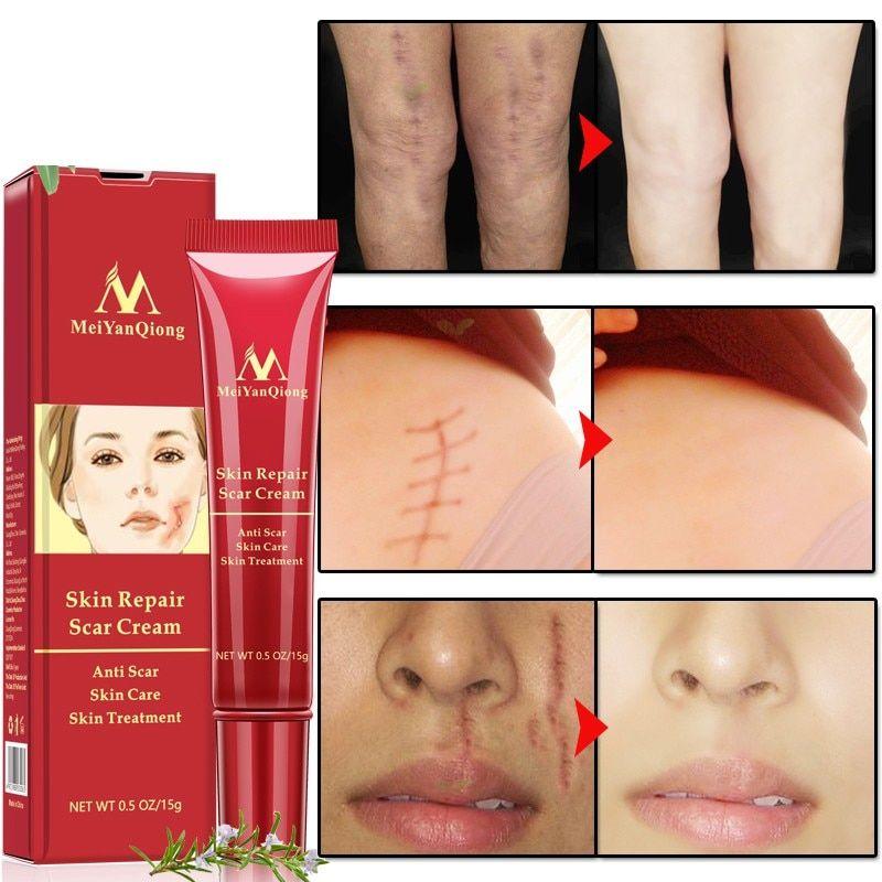 Rtopr Acne Scar Stretch Marks Bleach Cream Sửa Da Mặt Kem Trị Mụn