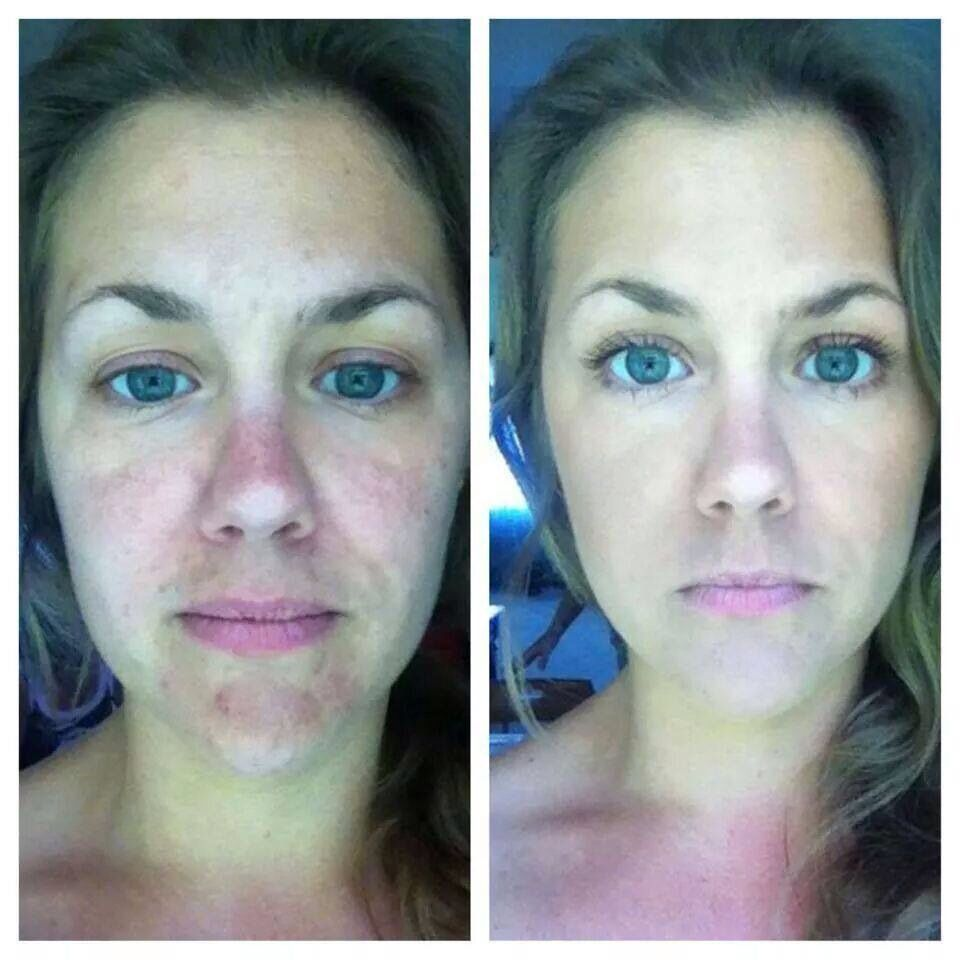 Before Amp After Photo S Of Clients Face After Using Arbonne