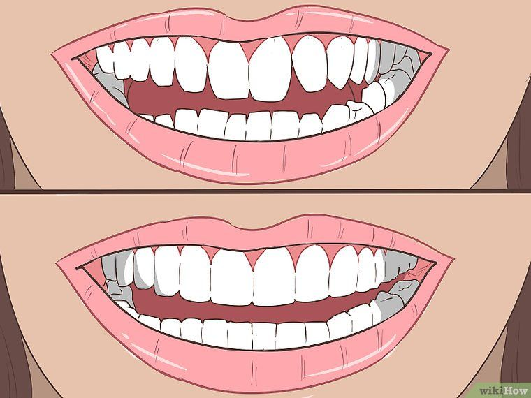 Straighten Your Teeth Without Braces Teeth straightening