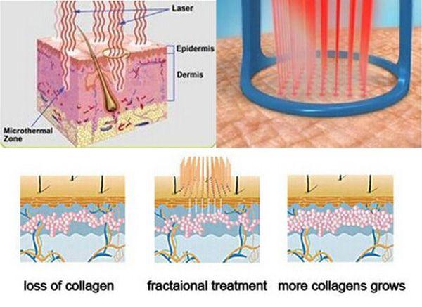 Pin on Fractional co2 laser skin resurfacing