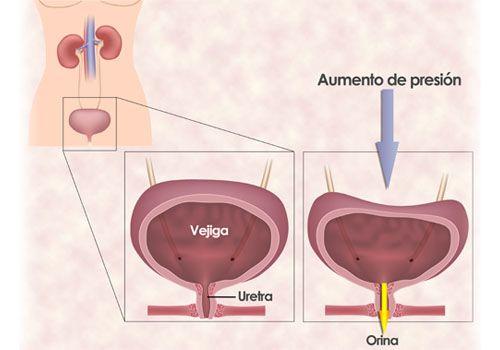 Ejercicios para la incontinencia urinaria de la mujer - Mejor con Salud