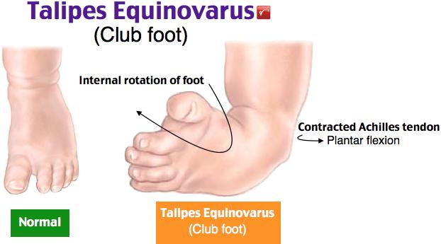 Резултат с изображение за talipes equinovarus