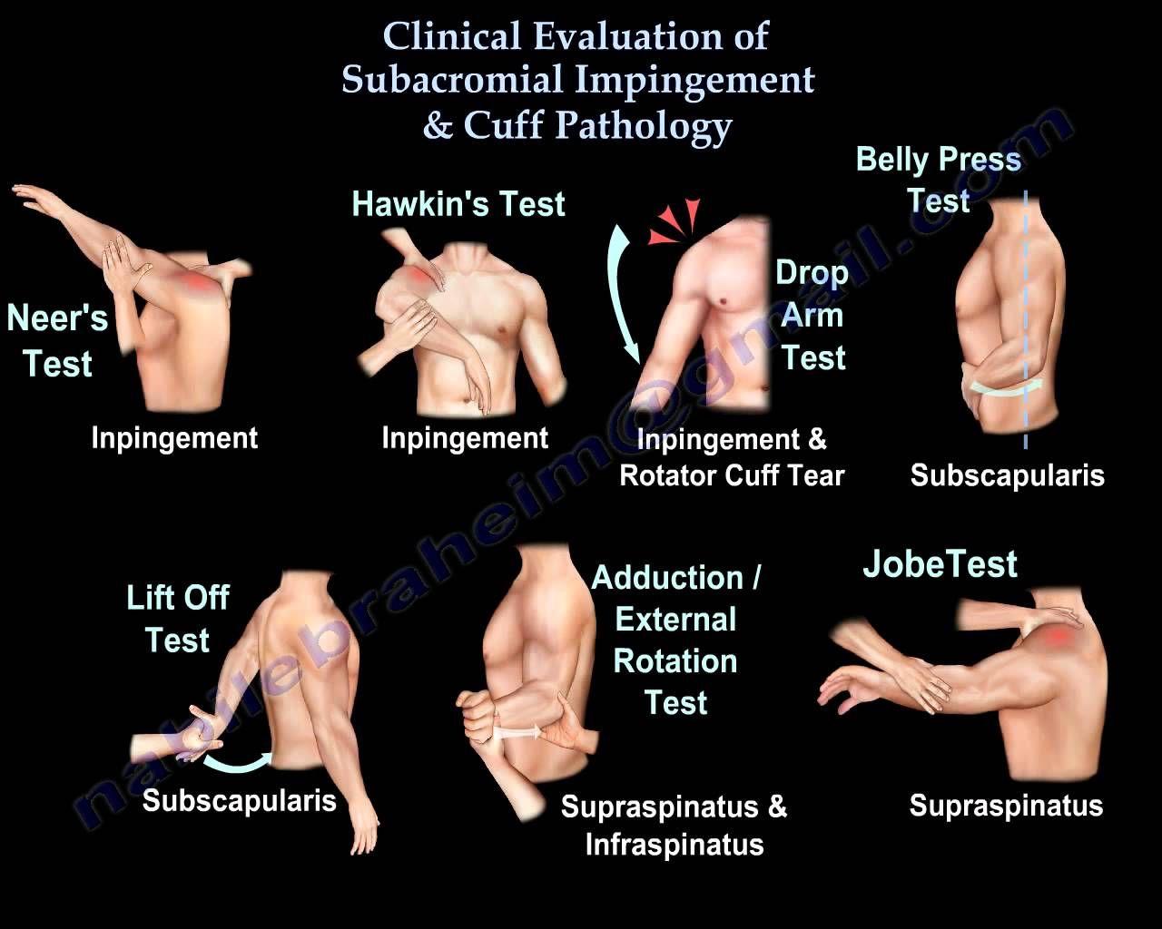 TEST HOMBRO | PT | Pinterest | Fisioterapia, Anatomía y Medicina