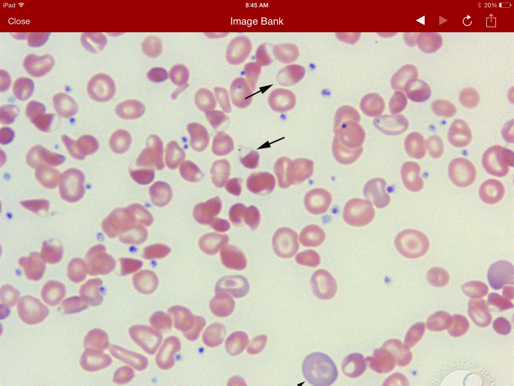 Case studies in hematology and coagulation : ASCP caseset
