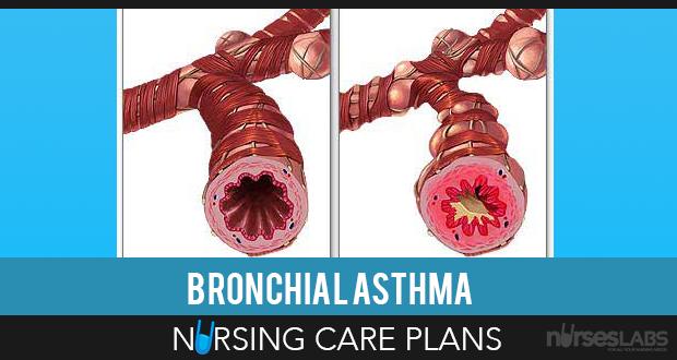 Nursing Diagnosis for Asthma: 8 Nursing Care Plans | Home ...