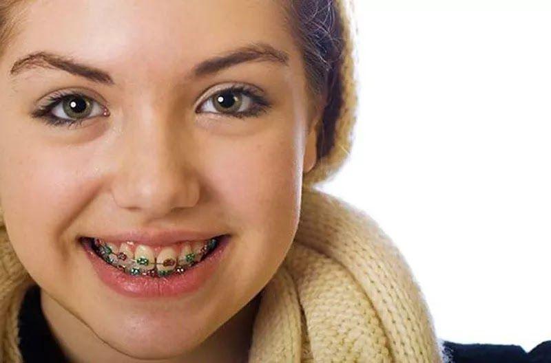 تقويم الأسنان للأطفال وأفضل عمر لتركيب تقويم الأسنان
