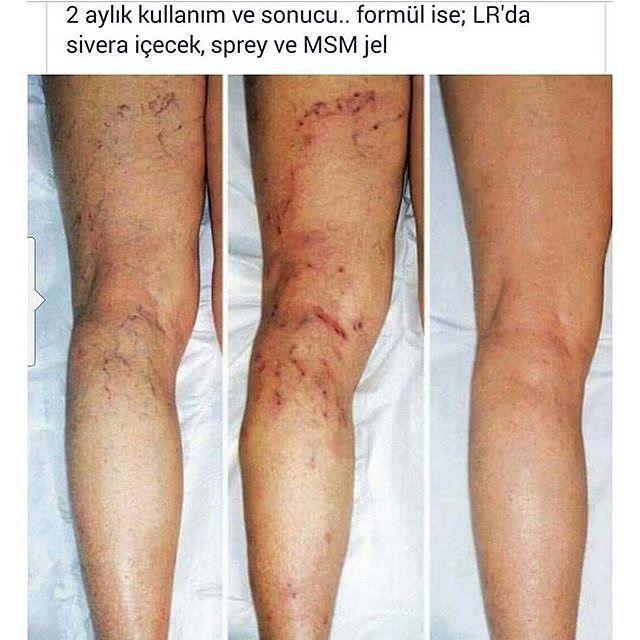 #lr varis tedavisi..kullanıcı yorumları.. alıntıdır.  #varis #tedavi #sedef #egzama #migren #yanık #leke #cilt #ciltbakımı #makyaj #sağlık #güzellik