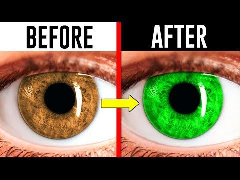 eye change eyes improve colour crazy optical trick illusions natural vision surgery improving tv laser