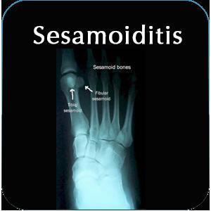 Sesamoiditis Foot Bone Disorder Podiatry St Louis