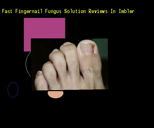 Fast Fingernail Fungus Solution Reviews In Imbler Nail Fungus