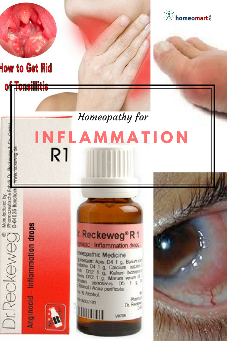 Buy Dr Reckeweg R1 Inflammation Drops, Homeopathy Medicine