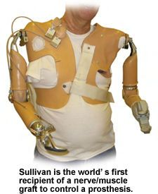 Sullivan is the world's first recipient of a nerve/muscle graft to control a prosthesis.