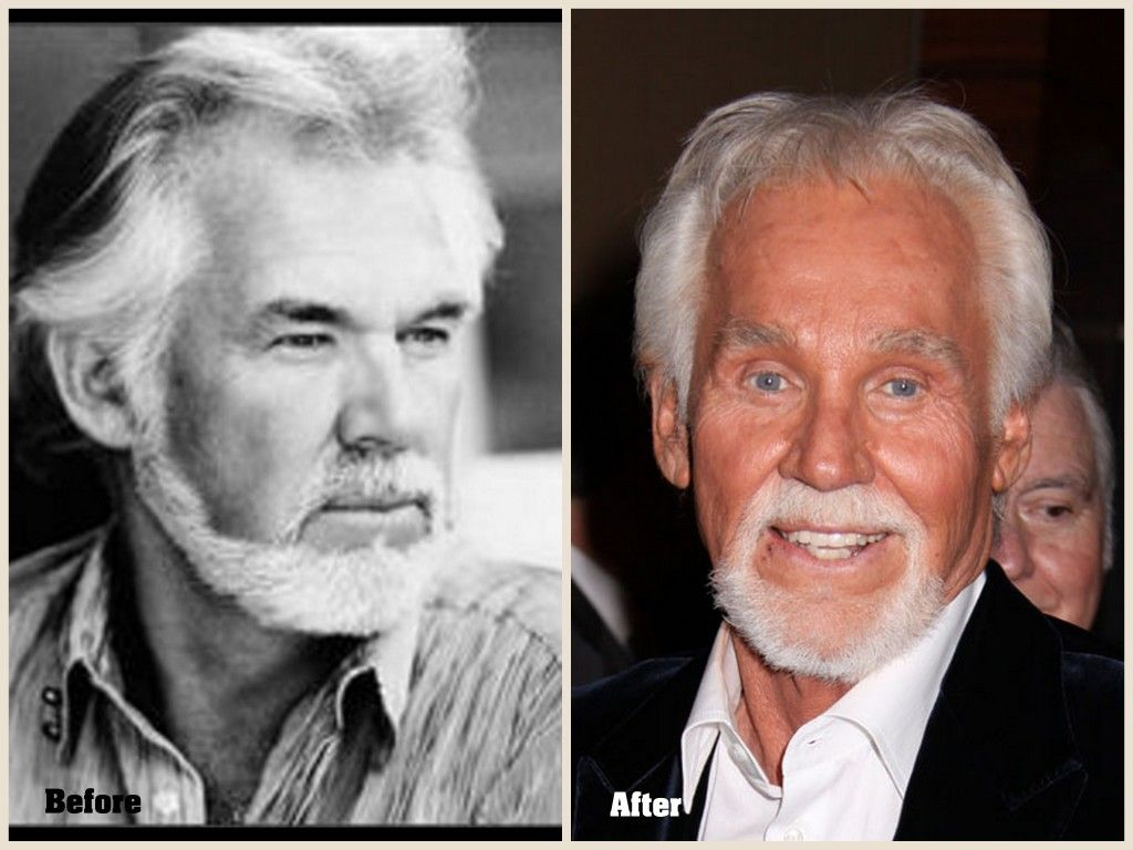 Kenny Rogers Plastic Surgery Before And After Photo 2013