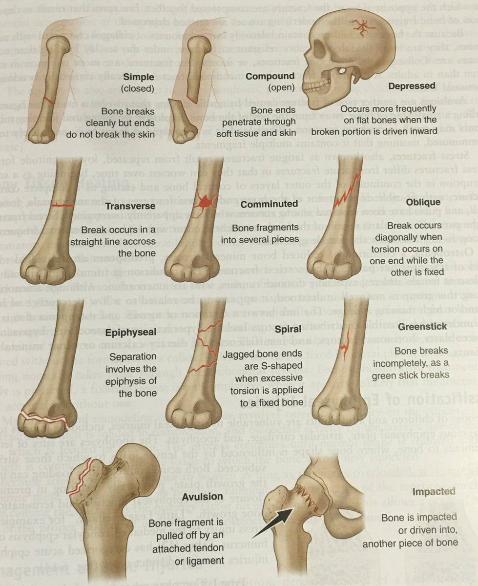 Atc Boc Study Guide On Orthopedics Radiology Types Of Fractures