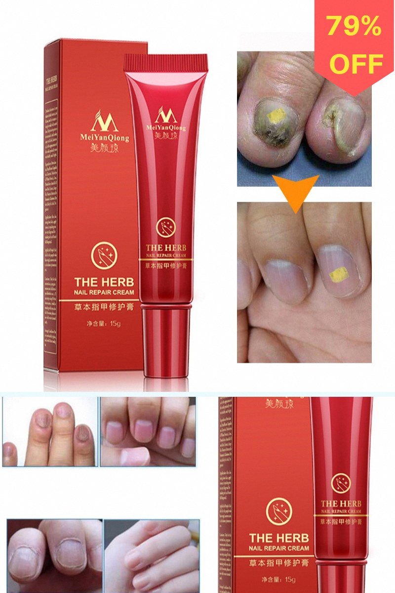 With the Nail Repair Cream, your brittle, dry nails will be supple and beautiful and attain the natural silky sheen they're meant to have! Eliminate dark discoloration caused by debris build-up under the nail and restore nail's natural, pink sheen!No stimulation, no pain, no side effects. #BeautyfulNails #DIYNails #HealthyNails #WhyHairLoss #BestHairOilForHairLoss #BiotinAndHairLoss