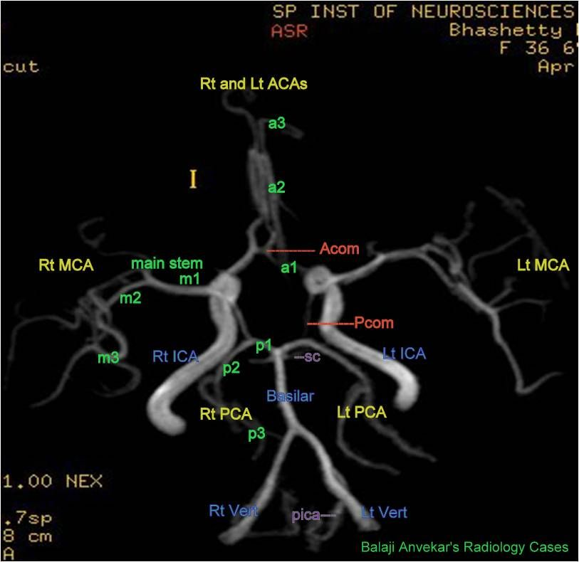 The circle of Willis is the ring of interconnecting vessels that ...
