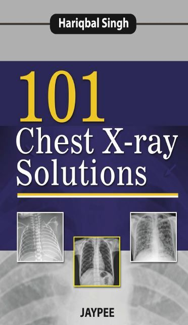 101 Chest X Ray Solutions X Ray Radiology Imaging Free Medical