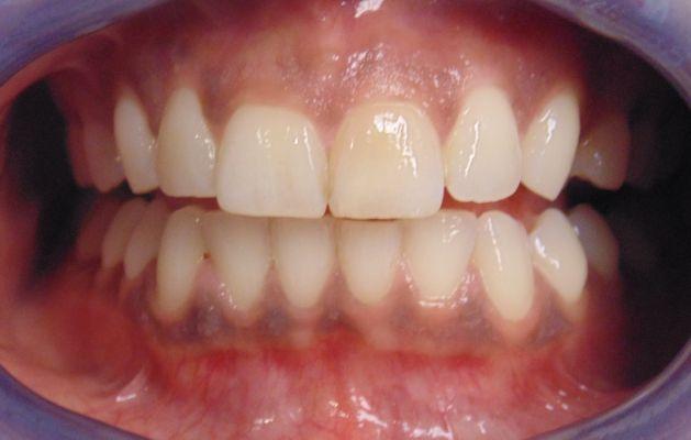 في قسم طب الاسنان يتم علاج اعراض امراض اللثة نزف اللثة تصبغات اللثة بالليزر التهاب اللثة قص اللثة بالليزر
