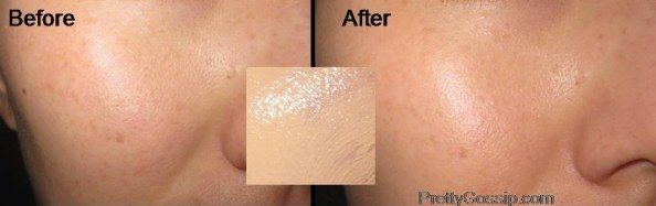 BB Cream: Before and After pictures. Click to see which BB cream this one is!