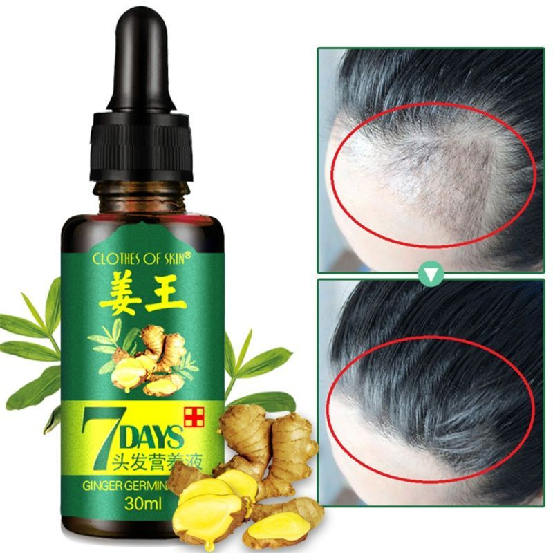 7 days hair essential oil hair care oil hairstyle hairstyle ginger mask  #essential #ginger #hairstyle